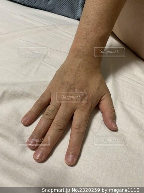 アレルギーによる皮膚の炎症の写真・画像素材[2320259]