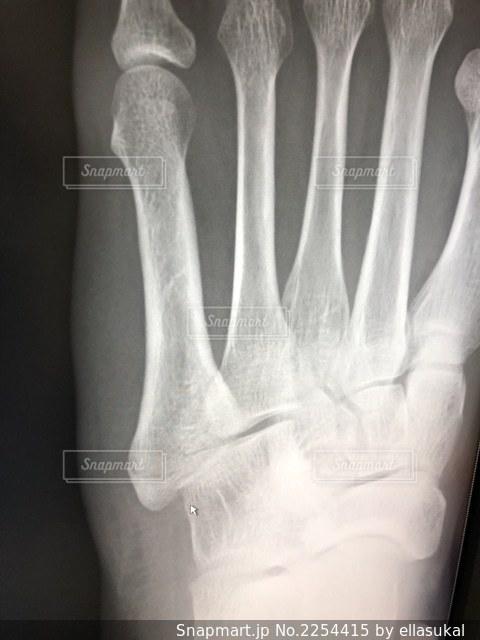 足の写真・画像素材[2254415]