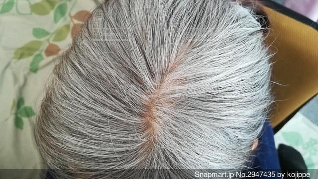 高齢女性の白髪頭。頭頂部の薄毛の写真・画像素材[2947435]