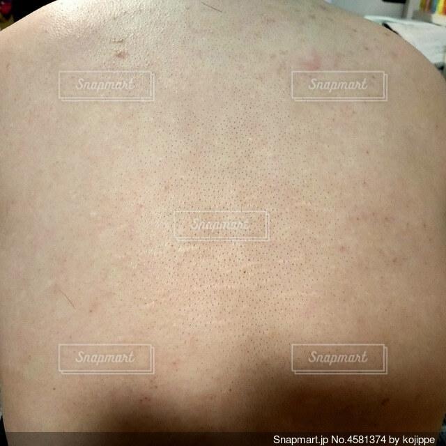 30代女性の毛穴の黒ずみが目立つ背中の写真・画像素材[4581374]