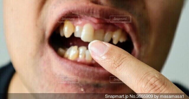 歯並びが悪い男性のクローズアップの写真・画像素材[3655909]