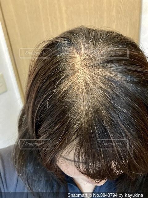 頭頂部のクローズアップの写真・画像素材[3843794]