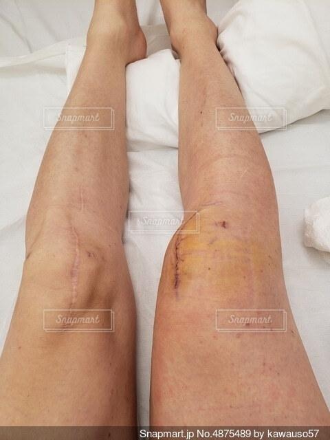 膝の手術跡の写真・画像素材[4875489]