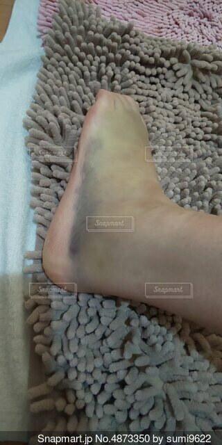 怪我をした足の写真・画像素材[4873350]