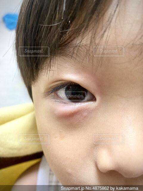 アレルギーの蕁麻疹の写真・画像素材[4875862]