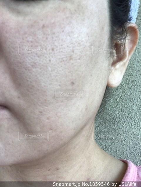 肌が汚いの写真・画像素材[1859546]