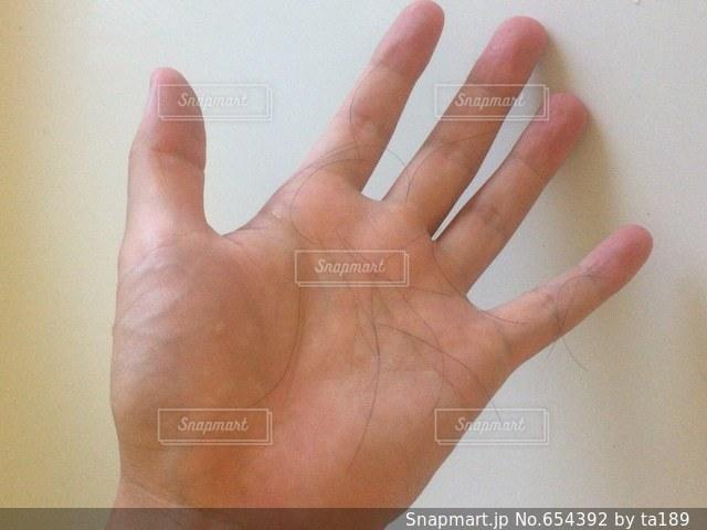 男性の手のひらに抜け毛たっぷりの写真・画像素材[654392]