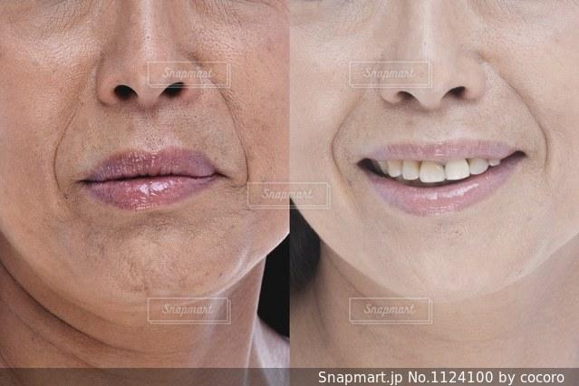 女性口元、鼻ビフォーアフターイメージの写真・画像素材[1124100]