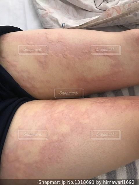 ひどい蕁麻疹の写真・画像素材[1318691]