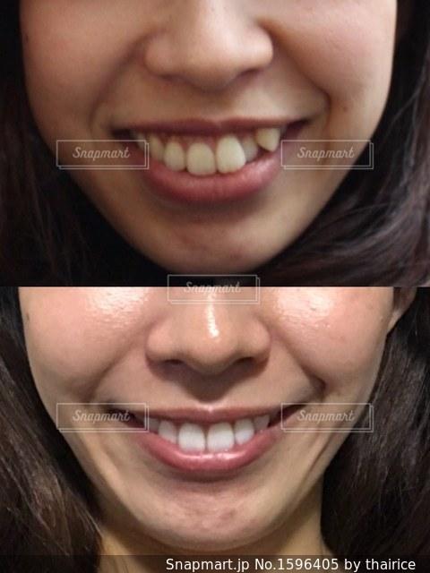 歯列矯正、ホワイトニング、ダイエットのビフォーアフターの写真・画像素材[1596405]