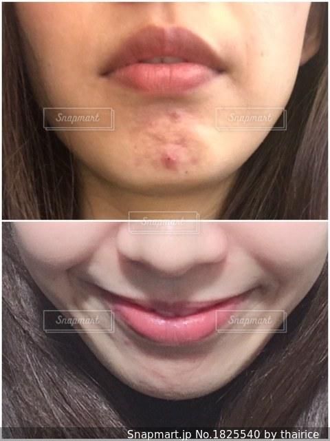 ニキビ 唇 唇ニキビの原因とは?口まわりニキビの対処&予防法【皮膚科医監修】