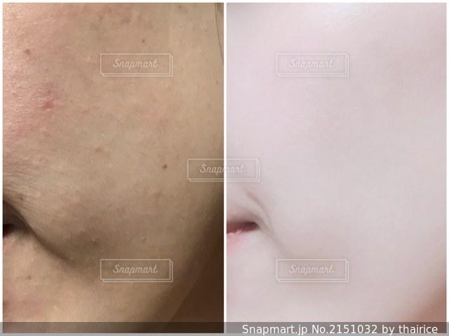 肌質改善の写真・画像素材[2151032]