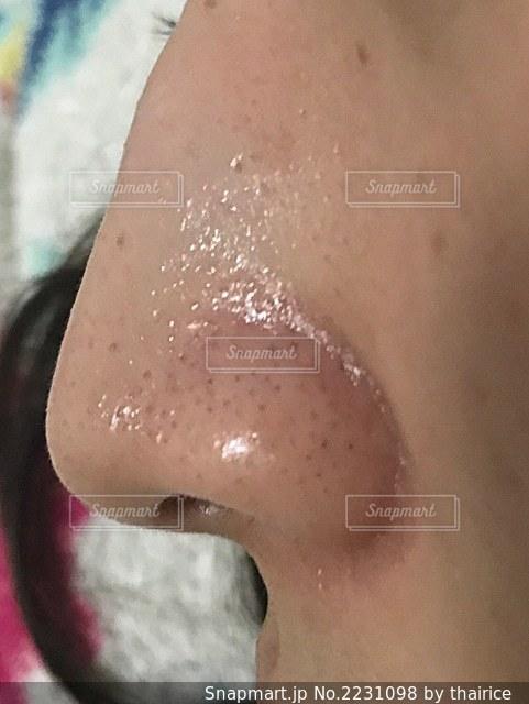 いちご鼻の写真・画像素材[2231098]