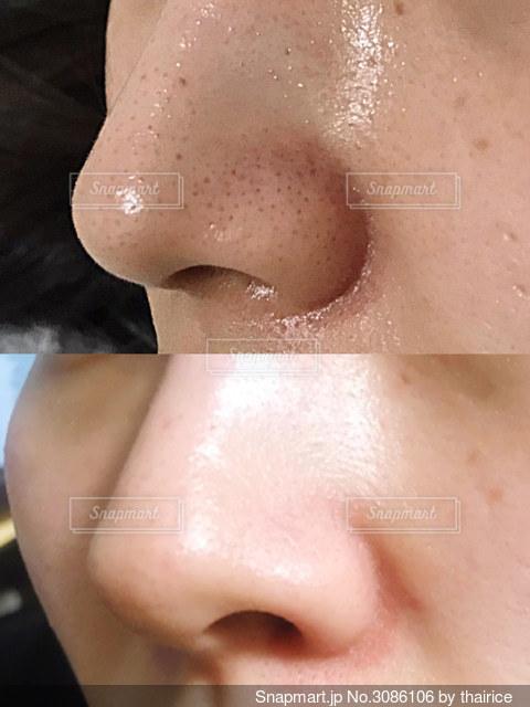 いちご鼻 ビフォアフターの写真・画像素材[3086106]