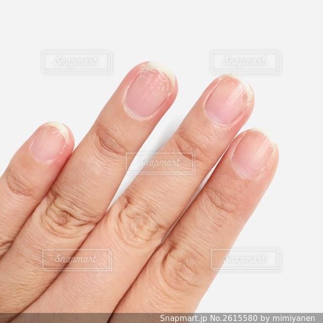ジェルネイルをとったら爪がこんな悲惨なことになってたの写真・画像素材[2615580]