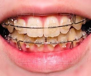 歯列矯正の写真・画像素材[3705390]