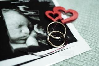 息子のエコー写真と結婚指輪の写真・画像素材[4398207]