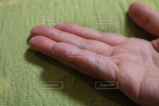 手,指,肌荒れ,カサカサ