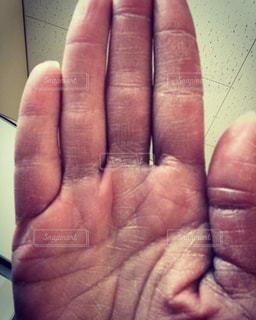 肌荒れの写真・画像素材[570342]
