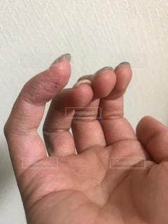 痛い,肌荒れ,かゆい,手湿疹,アカギレ