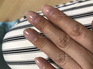 黒ずみ,肌あれ,爪の付け根,痒み,水ぶくれや乾燥