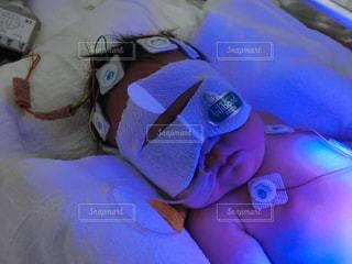赤ちゃん,医療,黄疸,0才,光線治療
