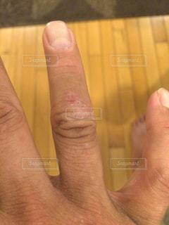 肌荒れ,かゆい,手湿疹,アトピ,繰り返す,10年治ってない