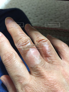 指,肌荒れ