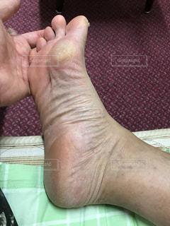 足の写真・画像素材[570782]
