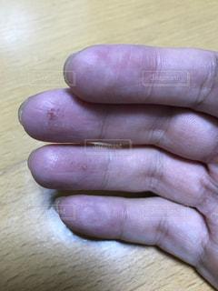 手,ステロイド,肌荒れ,アトピー性皮膚炎,爪割れ