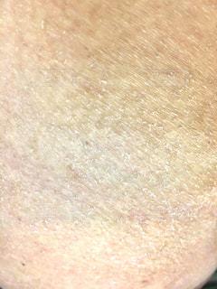 アトピー,肌荒れ,ヒビ割れ,カサカサ,乾燥肌,皮剥け
