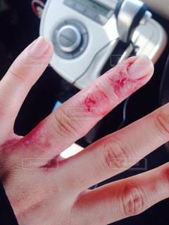 指,荒れ,手荒れ,肌荒れ,皮膚トラブル