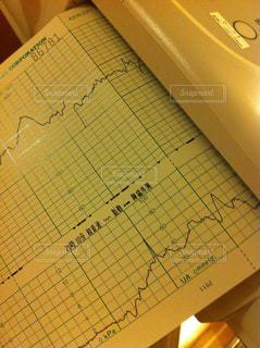 病院,医療,治療,グラフ,心電図,超音波
