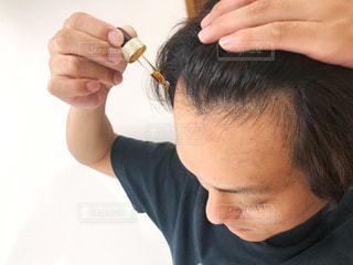 男性,髪の毛,ハゲ,薄毛,生え際,育毛剤,リアップ