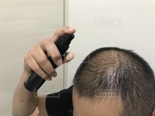 坊主,ハゲ,おでこ,薄毛,育毛剤,頭皮,発毛剤