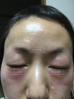 30代,目,肌荒れ,ヒリヒリ,目の周りの肌荒れ,化粧品の肌荒れ,赤い腫れ,ピリピリ