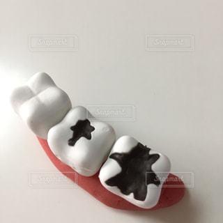 虫歯 イメージの写真・画像素材[3018447]