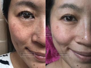 2ヶ月のお肌の写真・画像素材[1743213]