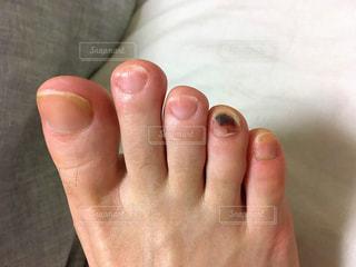 足の内出血の写真・画像素材[1904811]