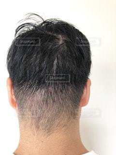男性の頭皮のクローズアップの写真・画像素材[2323784]