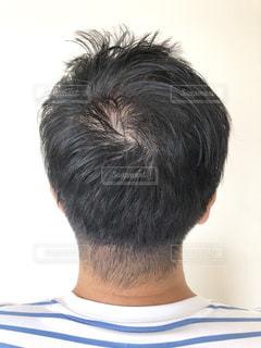 男性の頭皮のクローズアップの写真・画像素材[2323785]