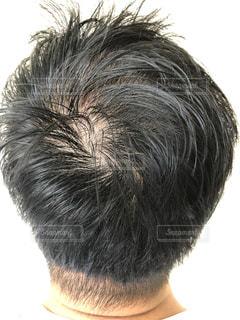 男性の頭皮のクローズアップの写真・画像素材[2323786]