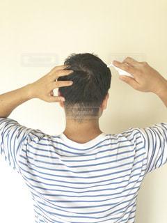 育毛剤を塗布する男性の写真・画像素材[2323788]