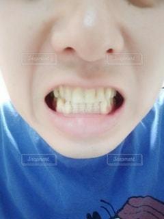 歯の写真・画像素材[2455567]