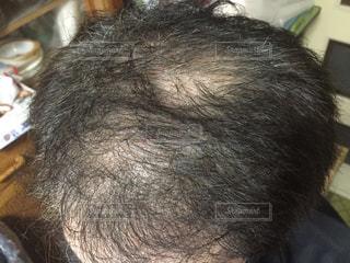 頭髪の写真・画像素材[1863238]
