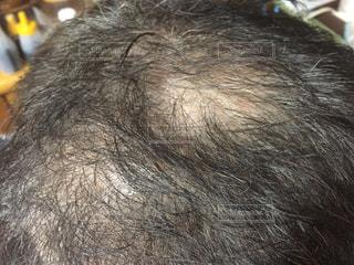 頭髪の写真・画像素材[1863239]
