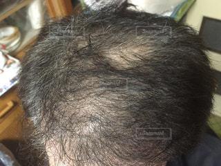 頭髪の写真・画像素材[1863241]