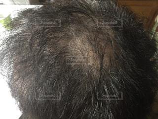 頭髪の写真・画像素材[1863242]