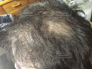 頭髪の写真・画像素材[1863243]
