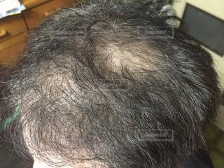 頭髪の写真・画像素材[1863244]